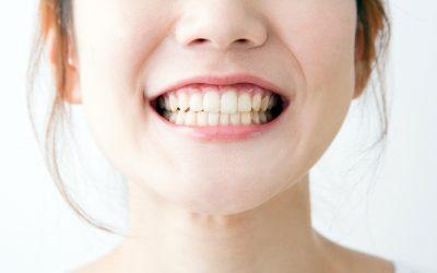 【健康医把抓】一口洁白亮丽的牙齿就是自信