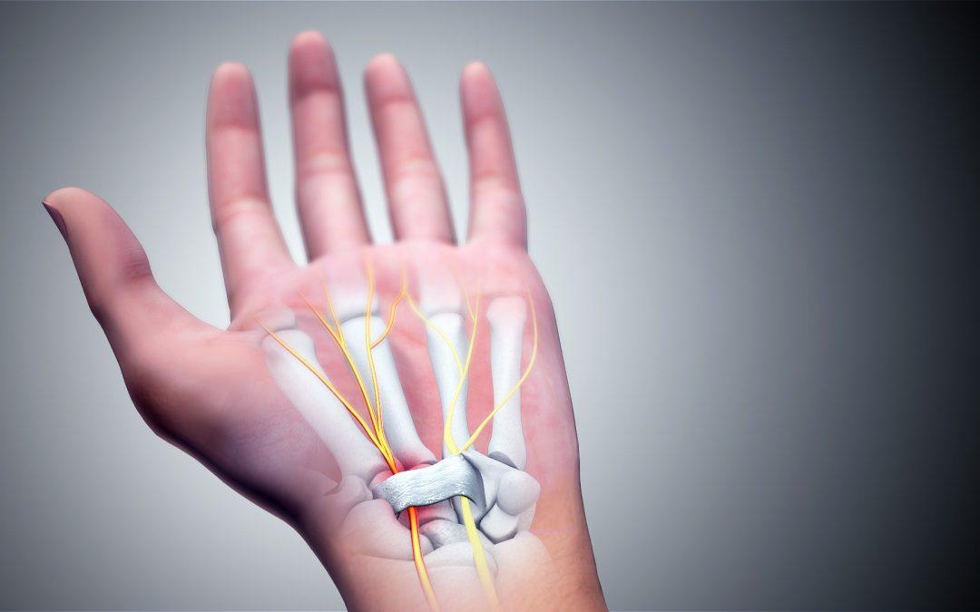 【健康医把抓】腕管综合症会怎么影响你的生活?