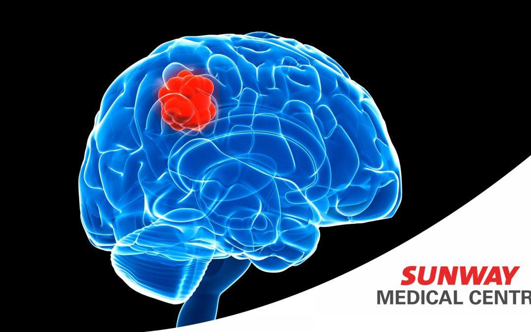 【健康医把抓】脑中有瘤,怎么办?